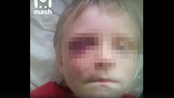 Пьяные парни избили шестилетнего мальчугана на улице