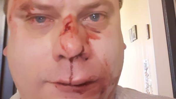 В Чехове неизвестные жестоко избили гражданского активиста Семена Наумова