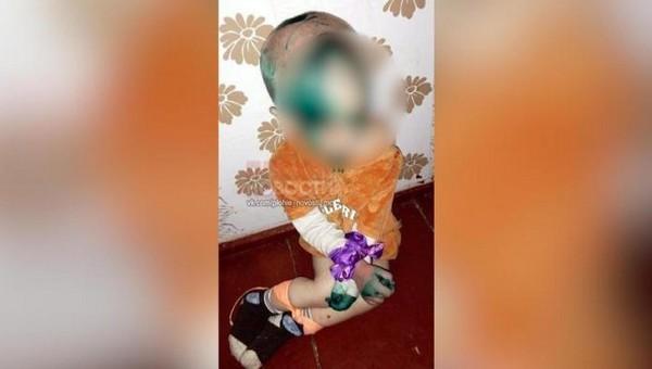 Полуторагодовалого мальчика били, связывали и морили голодом