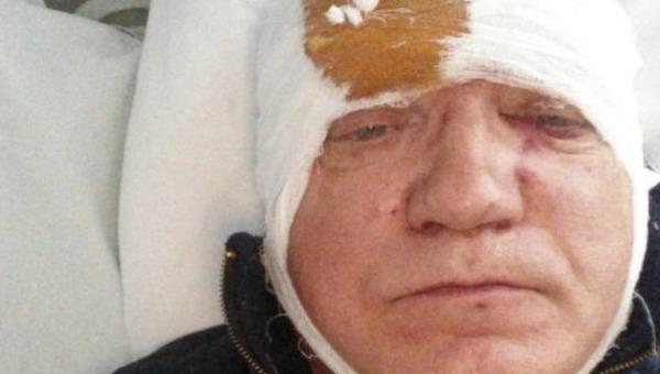 Жителю Подмосковья проломили голову за замечание