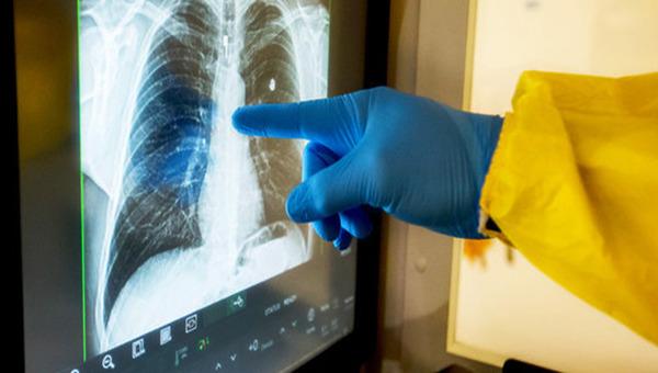 Теперь в больницу с «короной» заберут только при 50% поражении легких