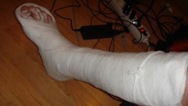 В российском травмпункте женщине наложили гипс прямо из мусорного ведра