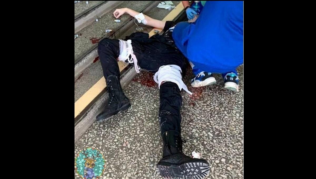 Тимуру Бекмансурову, устроившему бойню в Перми, отняли ногу