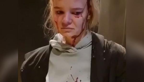 В Подмосковье девушку чуть не убил лифт