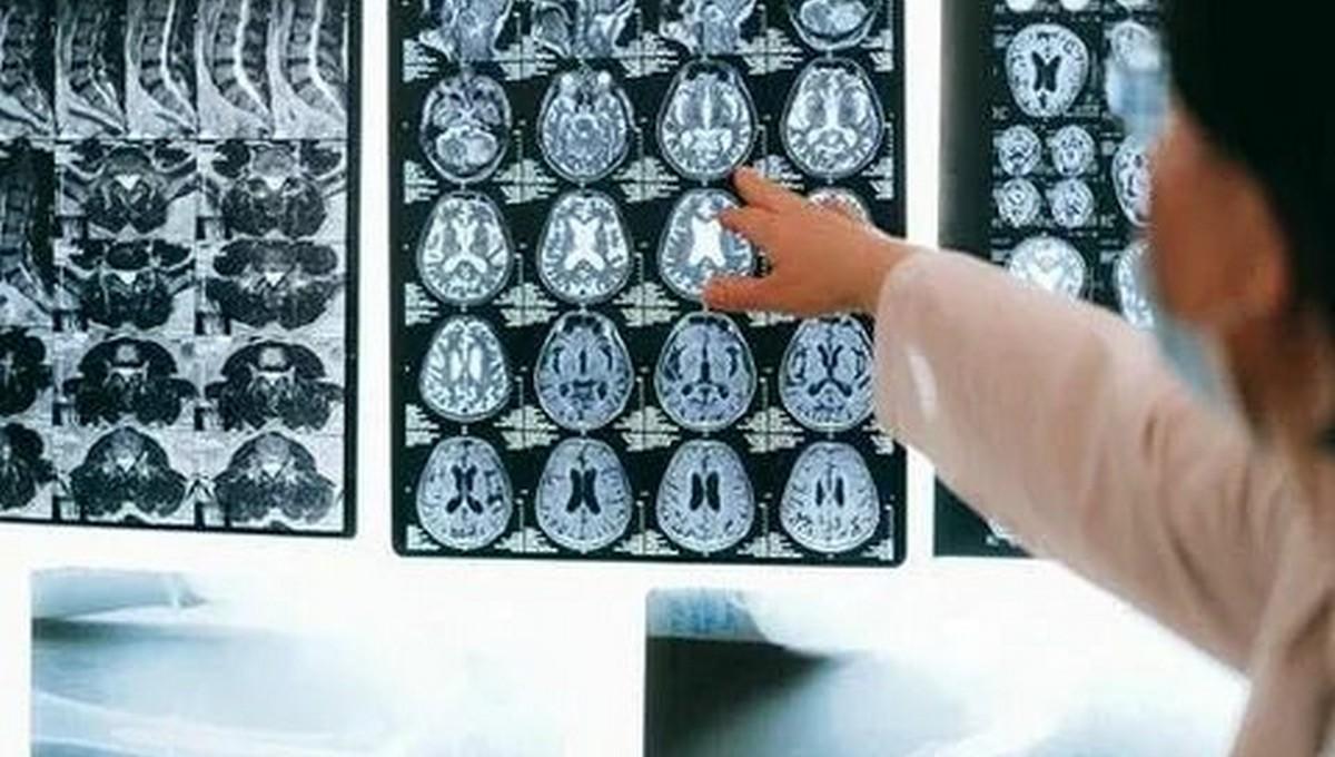 COVID-19 серьезно влияет на мыслительные способности